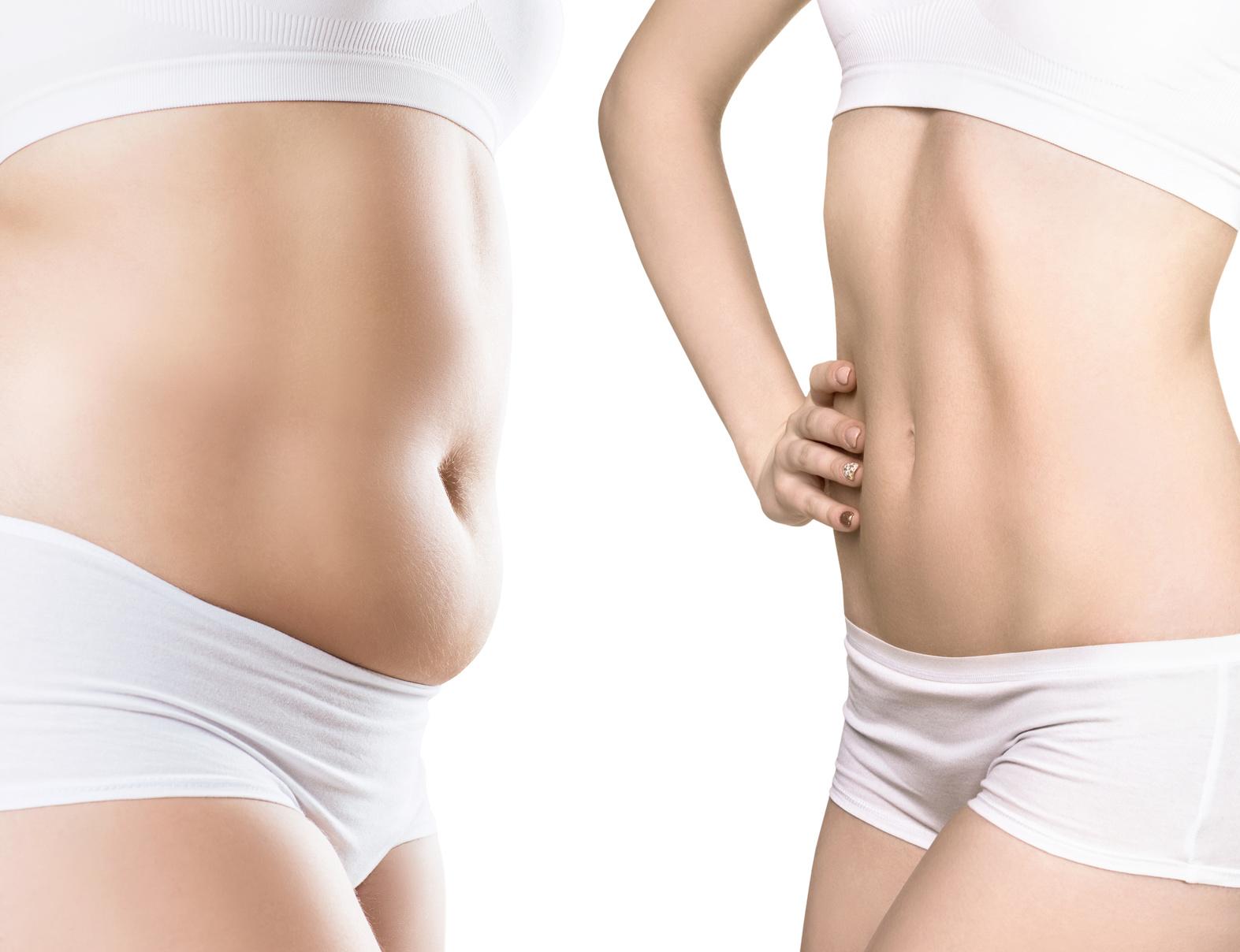 Kriolipoliza - rozbijanie komórek tłuszczowych za pomocą niskiej temperatury