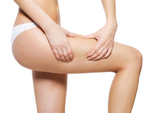 Symptoms  of  cellulite