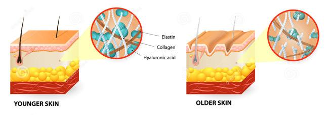 Younger skin - Older skin