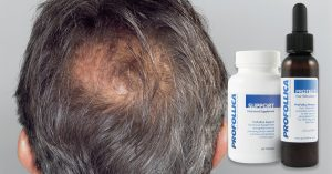 Why is ProFollica ™ so Effective hair loss solution?